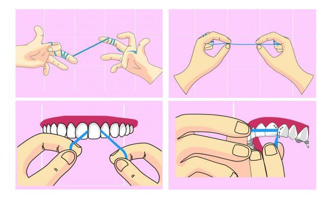 Így használd a fogselymet