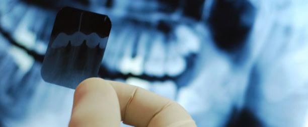 fogröntgen