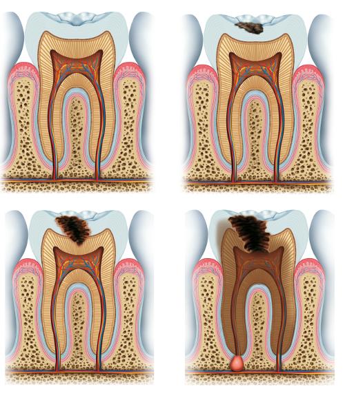 A fogszúvasodás folyamat - gyökérkezelés 2-es kép