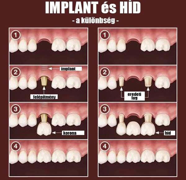fogászati implant és híd