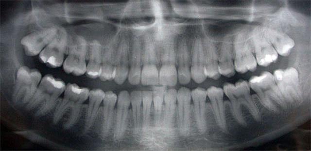 Panoráma röntgenfelvétel