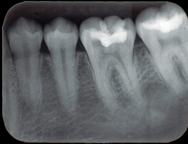 Periapikális röntgenfelvétel