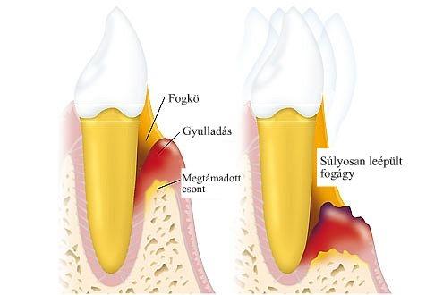 parodontitis_fogínysorvadás