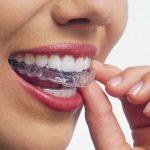 Fogsoremelő fogcsikorgatás ellen