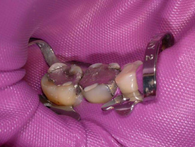 Kofferdám gumilepedő a fogakon