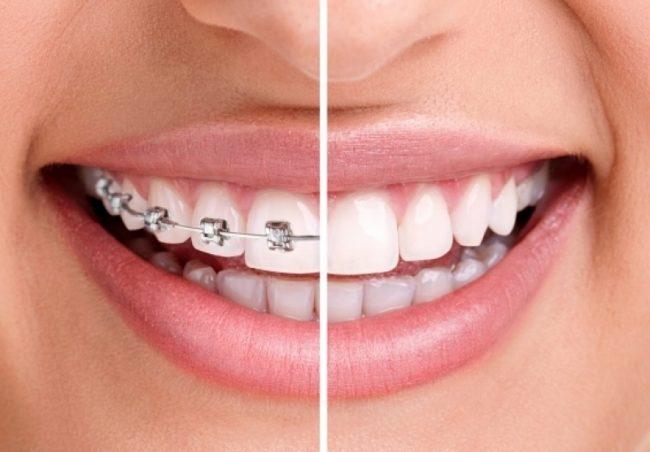 fogszabalyozás előtte és utána