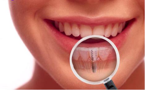 fogászati implant